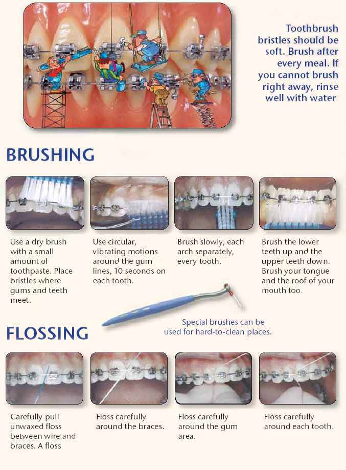 how to clean braces properly